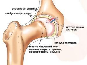 Тазо бедреный сустав лекарство из каштанов для суставов